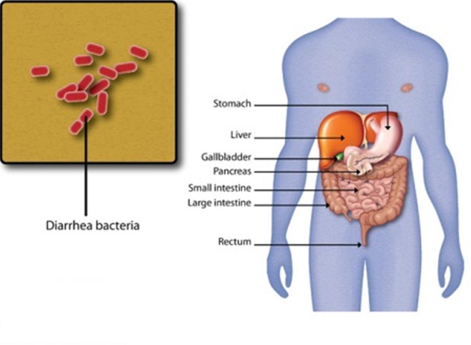 (认证版)rBS疫苗与儿童细菌性腹泻防制